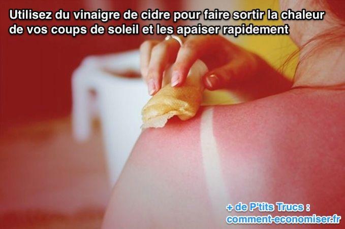 Utilisez du vinaigre de cidre pour faire sortir la chaleur de vos coups de soleil et les apaiser rapidement