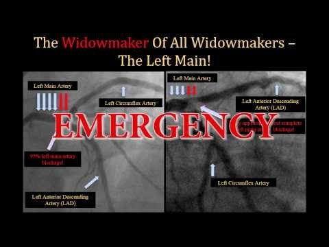 Widowmaker Heart Attack Explained by Cardiologist • MyHeart