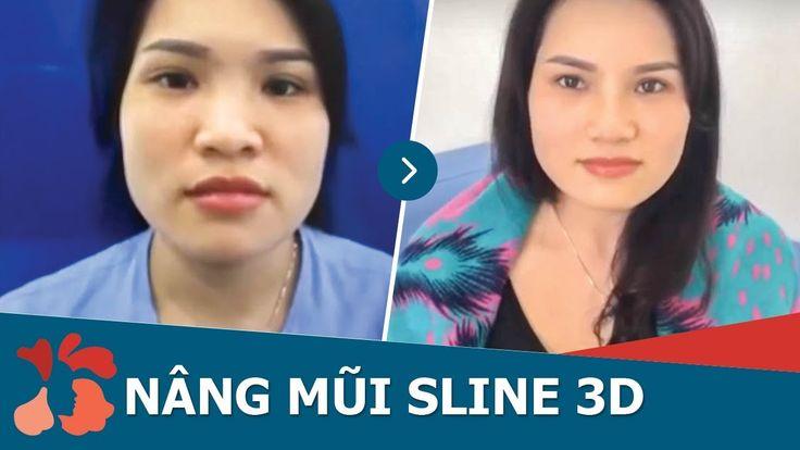 Tái khám nâng mũi S Line 3D sau 10 ngày tại Kangnamhttps://www.youtube.com/watch?v=Cw0S4uCGgoQ