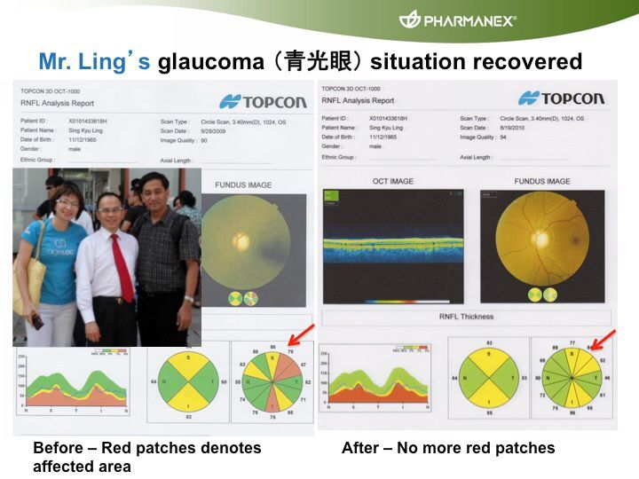 Glaucoma improved tremendously after taking g3 Superfruit juice.