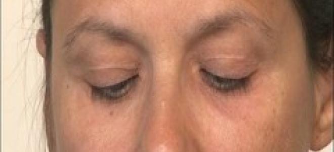 Comment reposer ses yeux ? Vos journées vous fatiguent les yeux ? Brigitte, coach bien être à domicile de tousmescoachs.fr, vous apprend des exercices pour reposer ses yeux. Grâce à des mouvements bien précis avec ses yeux et des moments de repos, soulagez vos yeux qui peuvent être fortement sollicités par les écrans d'ordinateurs. Suivez attentivement ces exercices de yoga pour les yeux en regardant la vidéo!
