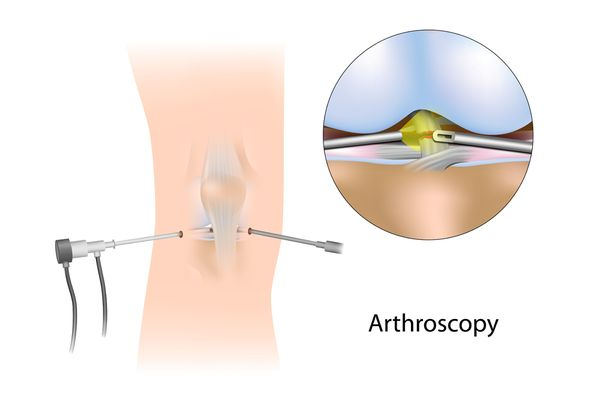 Knee Reconstruction using Minimally Invasive Techniques