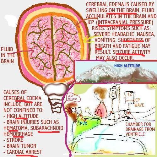 cerebral edema - Google Search