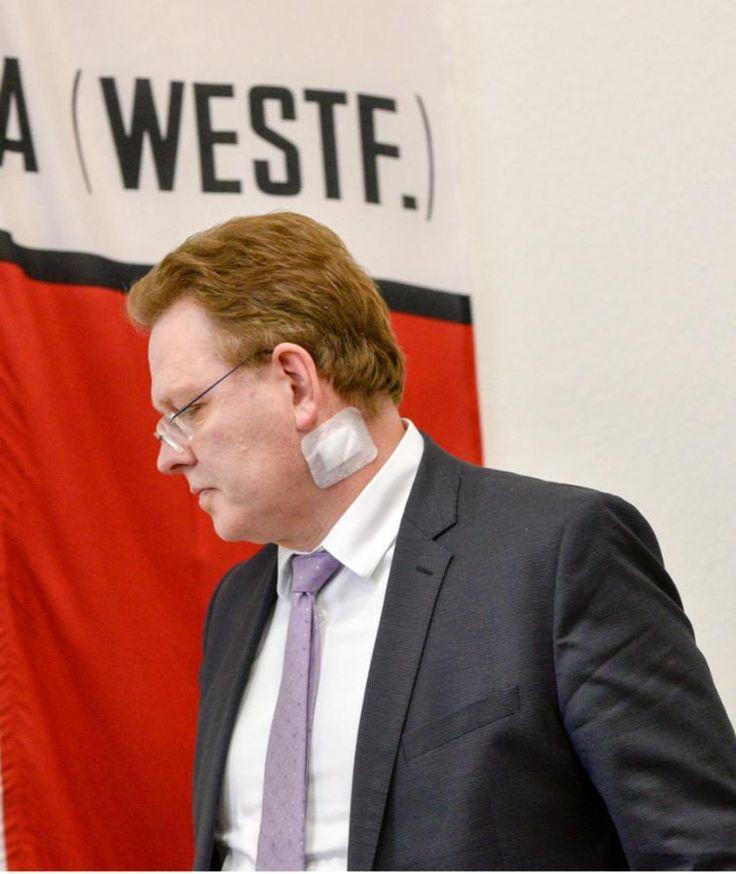 Mit einem Pflaster am Hals erschien Bürgermeister Andreas Hollstein am Dienstag nach dem Messerattentat auf ihn zur Pressekonferenz.