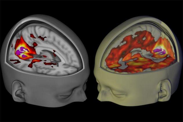 نوروسافاری  محقق مواد مخدر، دیوید نات (David Nutt) با روشهای تصویربرداری بر روی تأثیر مواد توهم زا بر مغز مطالعه میکند.  محققان اولین تصاویری که نشاندهنده تأثیرات LSD بر مغز انسان است را به عنوان بخشی از مطالعاتی که در این زمینه انجام شده است منتشر کردند. دانشمندان در