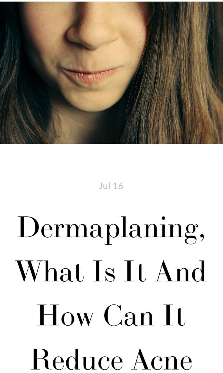 Dermaplaning, What Is It And How Can It Reduce Acne (With