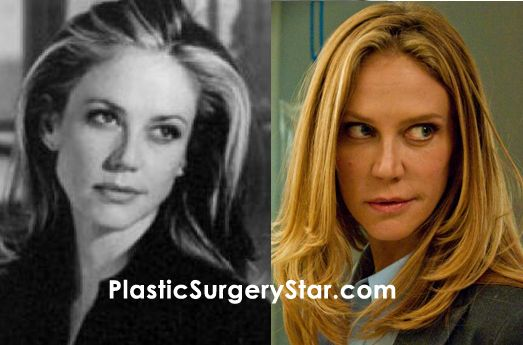Ally Walker had plastic surgery for her face.  The before and after photos show that she's had Botox injections and a possible facelift.