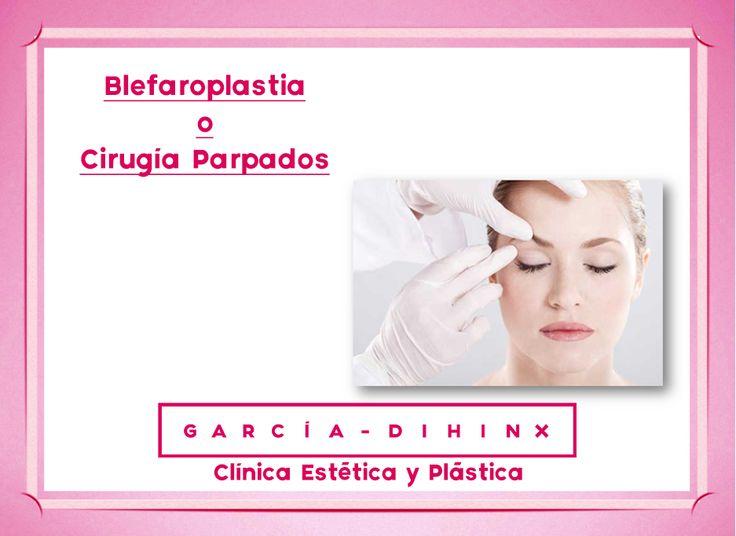¿Sabes en que consiste la Blefaroplastia o Cirugía de Párpados?