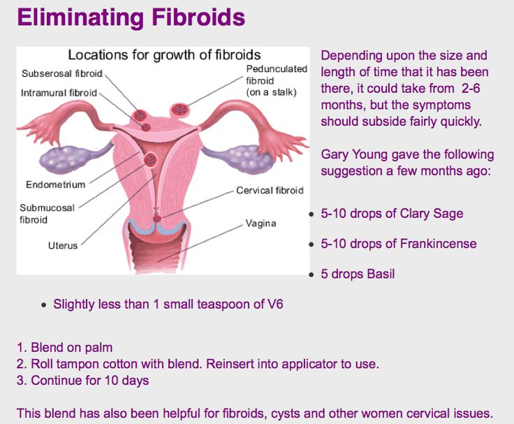Fibroids Treatment Natural Cures
