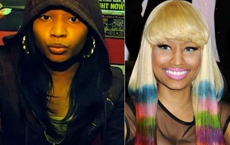 Nicky Minaj Plastic Surgery Before And After