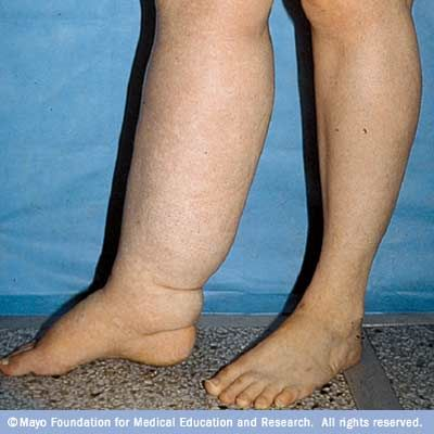 Best Natural Remedies For Lymphedema