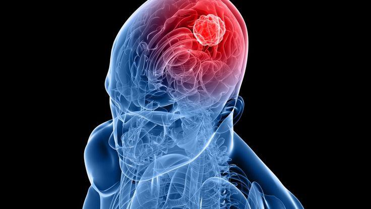 Опухоль головного мозга – нестандартное разрастание мозговых клеток, как в пределах жизненно важного органа, так и по его оболочкам. Исходя из результатов клинических исследований, все опухоли можн…