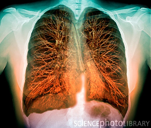3-D MRI of lungs