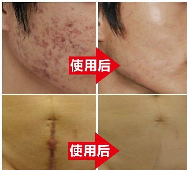 hot sales Nuobisong facial scar removal cremas facial Spots  treatment whitening face cream stretch marks moisturizing