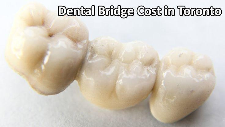 Dental Bridge cost in Toronto, Thornhill.  #Dental #Bridge #Dentalbridge #Toronto