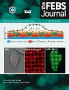 """Microarrays are Forever""- Article citing Genotypic Microarray Service The Gene expression study identified a set of iron-responsive regulon in C. glabrata. Titled- The mitogen-activated protein kinase CgHog1 is required for iron homeostasis, adherence and virulence in Candida glabrata, published on 13 March 2015 in the FEBS J. Congratulation to all the authors"