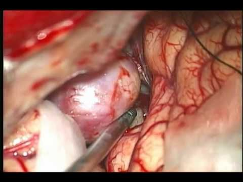 brain aneurysm clipping - YouTube