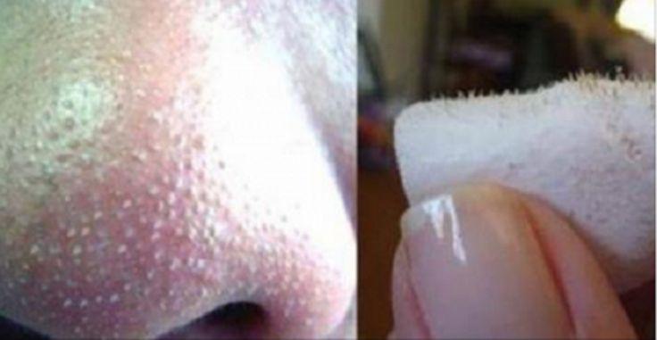 El principal problema de la nariz hoy en día son esos Horribles puntos negros que te salen, parecen tocones bien clavados en la nariz, esto cause mucha inseguridad en las personas quienes lo tienen ya que es un problema de estética! Es muy doloroso eliminar estos puntos negros ya que muchas veces estan bien incrustados ...