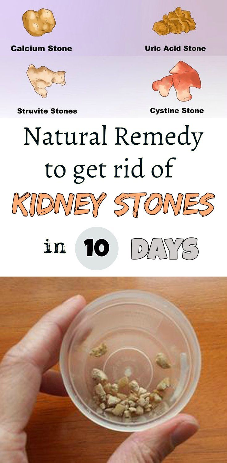 Natural remedy to get rid of kidney stones in 10 days!