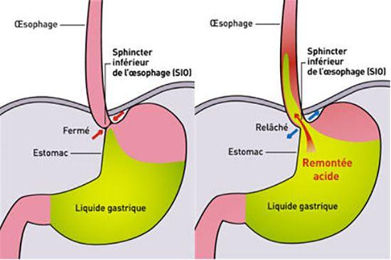 Le reflux gastro-oesophagien, ou remontées acides, se produit lorsque l'acide produit naturellement par l'estomac se répand de l'estomac vers l'œsophage. Le reflux gastro-oesophagien peut être causé par l'hyperacidité ou un changement radical dans les habitudes alimentaires. Le reflux gastro-oesophagien ou RGO entraîne des brûlures d'estomac. Causes possibles du reflux gastro-oesophagien Excès alimentaires Caféine Boissons alcoolisées Tabagisme Stress Consommation excessive d'aliments gras …