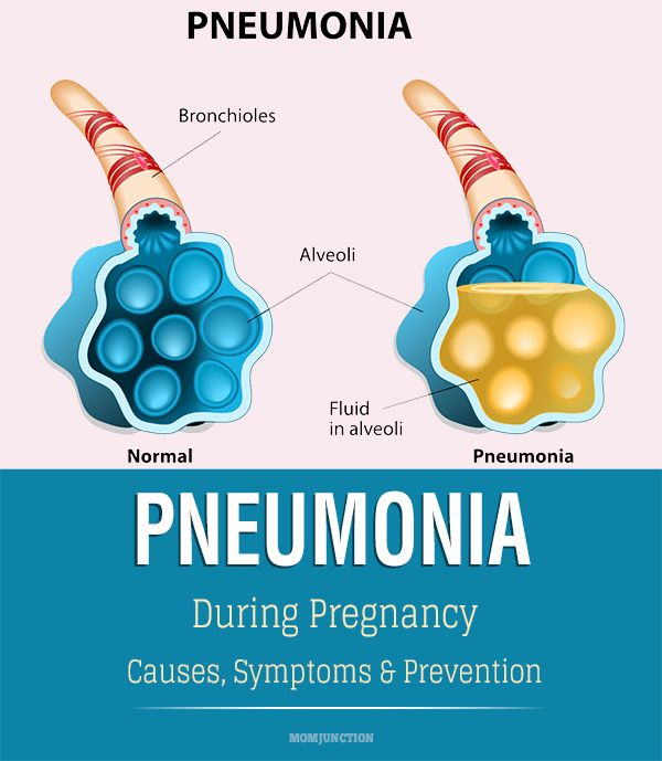 Pneumonia During Pregnancy - Causes, Symptoms And Prevention