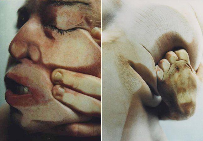 Muitos trabalhos mesclando arte e moda trabalharam recentemente a figura da nudez feminina e a exploração do corpo feminino como temas – mas nenhum com a contundência visual e a violência da parceria entre Jenny Saville e Glen Luchford. Inspirados nas cirurgias estéticas e na ideia de reconstrução de beleza, o trabalho, batizado de Closed Contact, a violência e a dor anestesiada desse tipo de operação. Saville é uma pintora conhecida por seus autorretratos, e por isso ela própria se ofereceu…