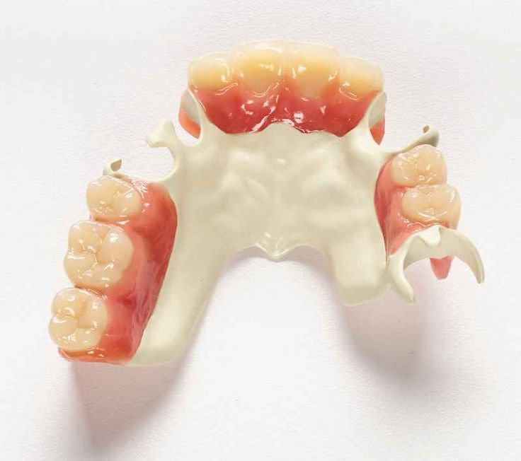 Ultaire AKP removable partial denture (RPD) from Solvay Dental