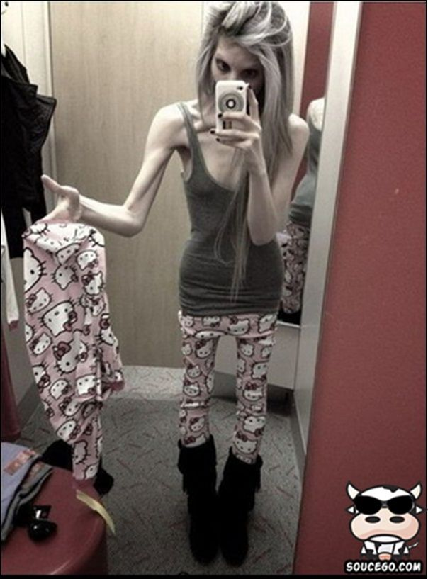 This is NOT beautiful....Anorexia This makes me sad.