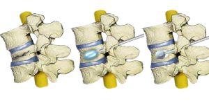 Σύγχρονη θεραπεία οστεοπορωτικών σπονδυλικών καταγμάτων με κυφοπλαστική  Η κυφοπλαστική, δηλαδή η τεχνική έγχυσης (ένεσης) οστικού τσιμέντου σε σπόνδυλο με κάταγμα, έχει συμβάλλει αρκετά στην αντιμετώπιση των οστεοπορωτικών σπονδυλικών καταγμάτων τα τελευταία χρόνια.  - See more at: http://www.andreasmorakis.gr/σπονδυλικών-καταγμάτων/