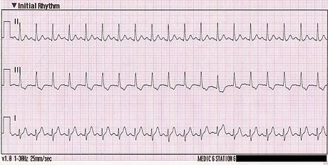 Sinus tachycardia-- (also colloquially known as sinus tach or sinus tachy) is a sinus rhythm with an elevated rate of impulses, defined as a rate greater than 100 beats/min (bpm) in an average adult. The normal resting heart rate in the average adult ranges from 60–100 beats/min. Note that the normal heart rate varies with age, with infants having normal heart rate of 110–150 bpm, in contrast to the elderly, who have slower normals.