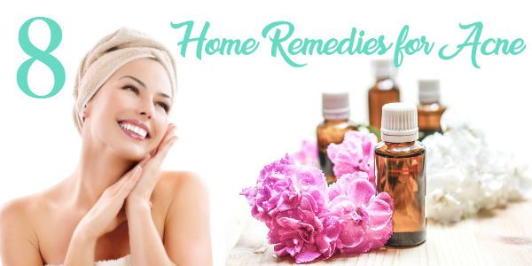 8 Home Remedies for Acne