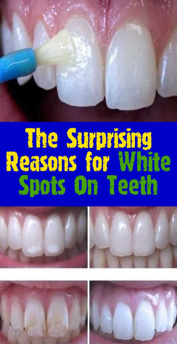 37b16f545d638f62c0f0c30f1e678d4f - How To Get Rid Of White Spot Lesions On Teeth