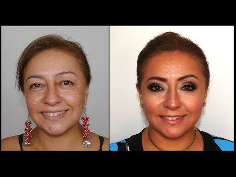 Cirugía de Párpados sin Cirugía -Eyelid Surgery without Surgery - YouTube