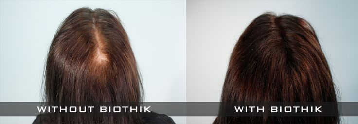 LOOKING FOR REAL HUMAN HAIR WIGS? TRY HAIR FIBRES!