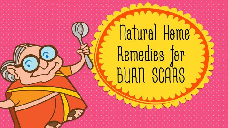 how to get rid of chemical burns on face