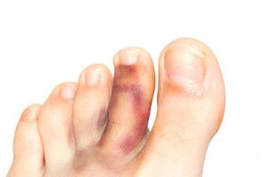 First Aid and Home Treatment for a Broken Toe. Ouch!  https://queensnassaupodiatry.com/first-aid-and-home-treatment-for-a-broken-toe/