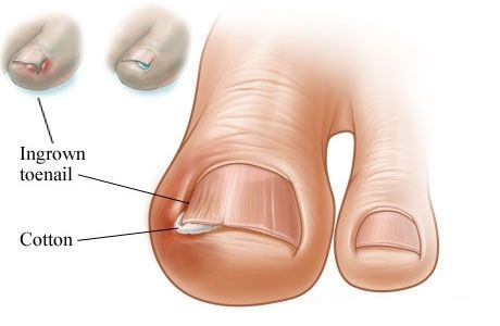 get rid of ingrown toenail