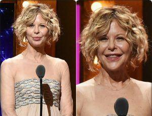 Мег Райан после пластики стала похожа на Джокера http://womenbox.net/stars/meg-rajan-posle-plastiki-stala-poxozha-na-dzhokera/  54-летняя американская актриса Мег Райан оказалась в последние дни в центре всех обсуждений, и все из-за неудачной пластики. Появившись в Нью-Йорке на 70-й церемонии вручения театральной премии Tony Awards, Мег