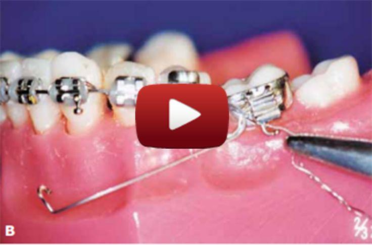 Cantilever com fio TMA Na clínica diária de ortodontia por muitas vezes nos…