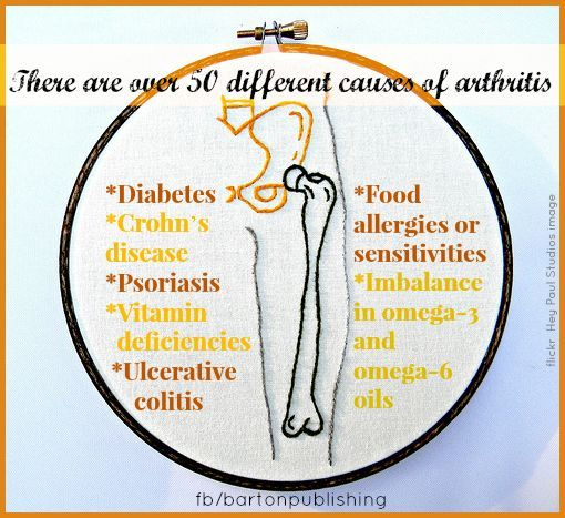 50 kinds of arthritis #ArthritisRemedies | Nursing Arthritis