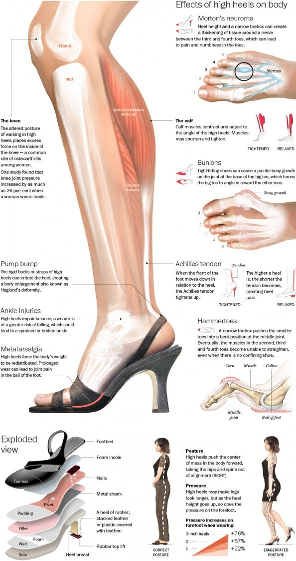 The True Effect of High Heels Infographic. Wear flats!