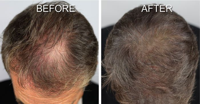 Scalp Shading By Microart Makeup Is A Great Solution For