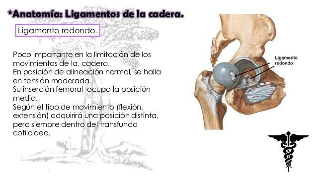 luxacion de cadera rotura del ligamento redondo - Buscar con Google