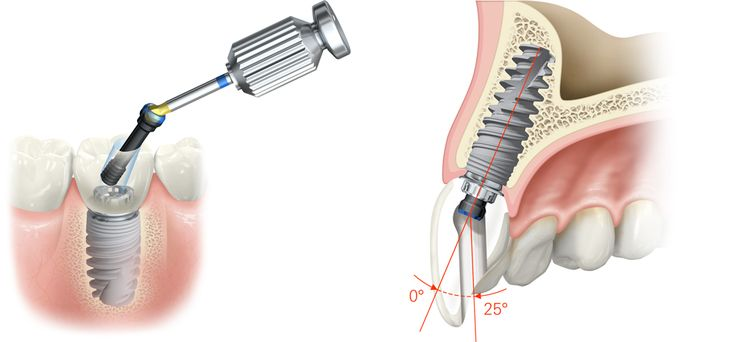 [How long does it take to replace my teeth?] --------------------------------------------------------- Dental implants need to integrate into the bone tissue to function well. The implants need to be completely healed to be able to hold the crown or bridge. This process takes time; usually it takes 3–6 months depending on the healing capacity of the body.✅ #dentalimplant #dentistry #dentalclinic #cvitaminclinic #szeged #hungary