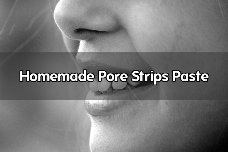 Pore strips work well, but they can get kind of expensive as you have to use them about once a week to get the desired result. This quick home remedy for acne is an easy way to save money by replacing those store bought pore strips. This remedy combines two natural ingredients to make homemade pore... - #strips #pore #paste #homemade #face #skin #nose