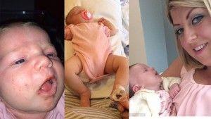 Hati-Hati Jika Bayi Terlalu Sering Diciumi Orang Dewasa, Bayi Ini Hampir Mati Karena Terlalu Banyak Diciumi Orang Dewasa