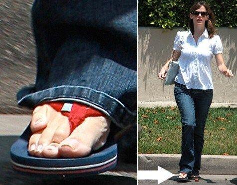 "Jennifer-Garner-Feet. she has a condition called ""brachymetatarsia"" – an overlapping pinky toe."