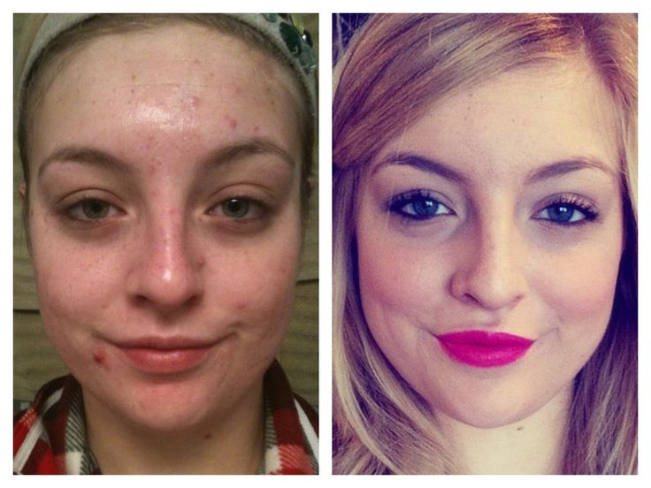 Final Month on Accutane! Before and After #AMS
