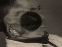 Chang Tzu Ping was discovered in China in the late 70's or early 80's. Chang had been born with a second face consisting of a mouth, a malformed tongue, several teeth, a patch of scalp, and the vestige of other facial constructs. The throat and the lips of the second face could not move independently, but the mouth did react in tandem to Chang opening his. Shortly after being discovered he was brought to the United States to have the second face surgically removed…