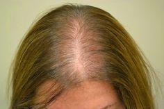 Receitas naturais para tratar a alopecia   Cura pela Natureza.com.br